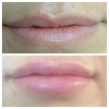 Lip Enhancement Before & After