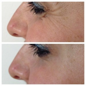 Before and After Botox Injections